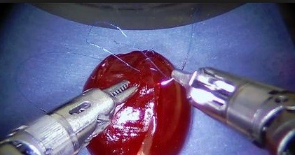 cerrahi robot 1